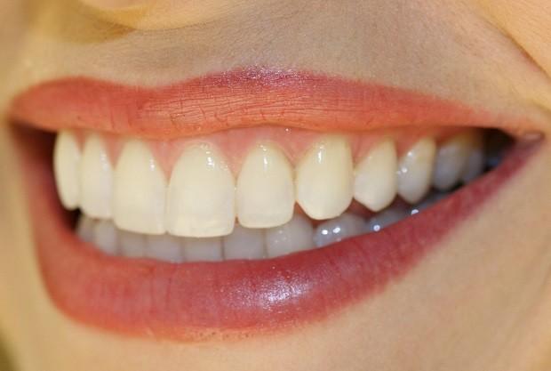 Zuti zubi od antibiotika