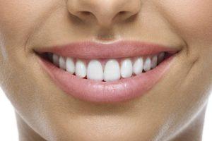 Upozorenje zubara: Sedam namirnica koje bi trebalo da izbegavate
