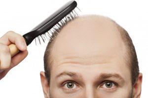Recept za tretman protiv ćelavosti: Nakon samo 2 dana vaša kosa će početi da raste! (Recept)