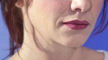 """Ublažava bore na vašem licu: Napravite sami """"botoks"""" masku"""