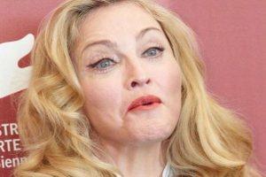 """Izobličila se od botoksa: Madonna preterala sa """"ulepšavanjem""""!"""