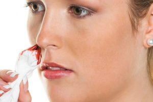 Krv iz nosa, šta uraditi?