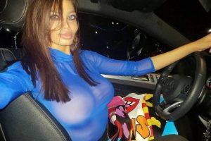 Plastični hirurg iz IRANA operisao Soraju i objavio njenu fotografiju!