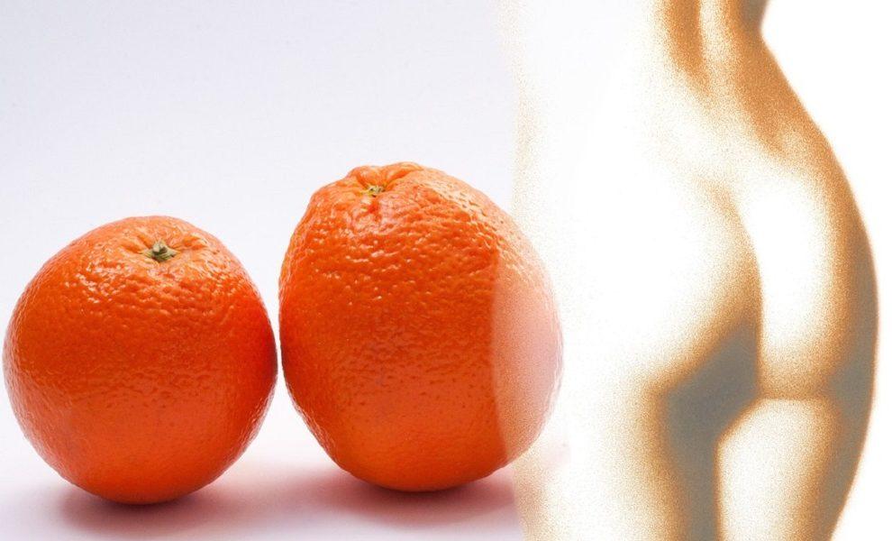 Borba protiv celulita: Šta pomaže, a šta ne?