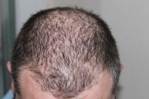 Gubite kosu? Konačno otkriven lek za ćelavost!