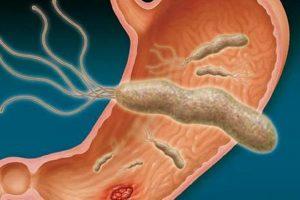 Kako da izlečite heliko bakteriju na prirodan način (RECEPTI)