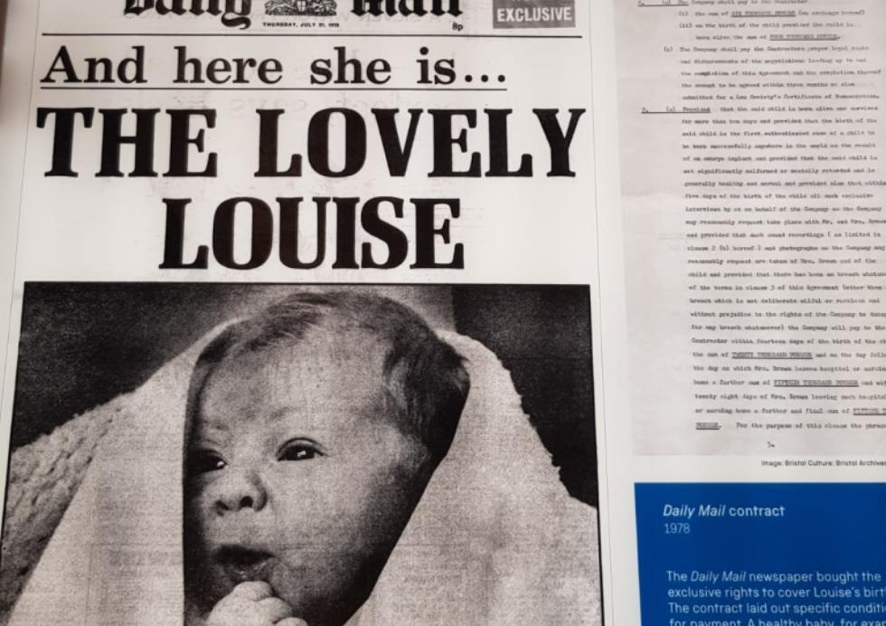 """40 godina od rođenja prve """"bebe iz epruvete"""" u svetu"""