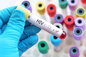 Naučne studije dokazale da HIV pozitivni ljudi ne mogu preneti virus!