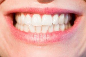 VRATITE ČAROBAN OSMEH: Pet načina da izbelite vaše zube!