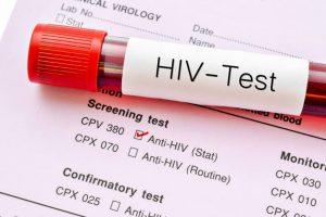 Besplatno testiranje na HIV u subotu u Beogradu