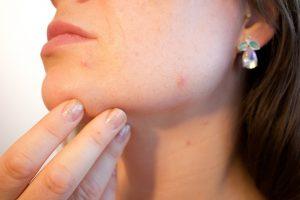 Spas od bubuljica – vakcina?