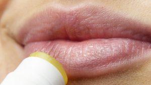 Rešite se herpesa na potpuno prirodan način