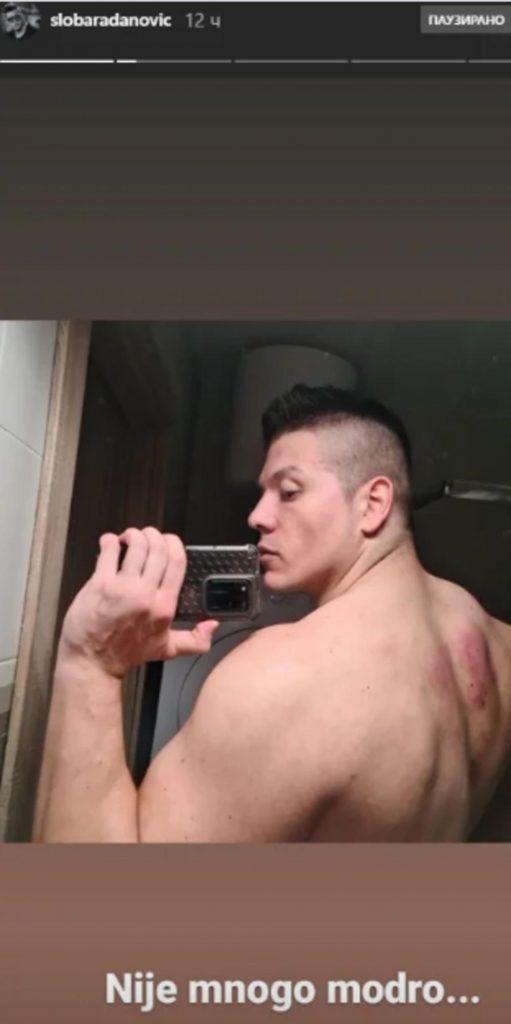 LEĐA MU SVA U MODRICAMA! Sloba Radanović pokazao povrede, svi se pitaju šta mu se DESILO!